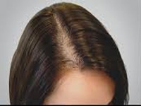 PRP therapy is a treatment for hair loss