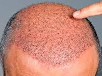 hair Transplantation in Bhubaneswar